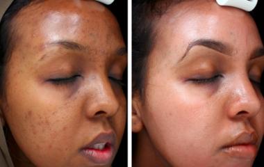 Skin Brightening Treatment In Johannesburg
